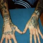 タトゥー除去手術ができる場合、できない場合